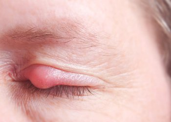 Stye, Causes, Symptoms, Home management, prevention